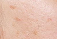 脂漏性角化症(老人性疣贅)イメージ
